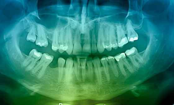 Do Dental X-rays Cause Cancer?