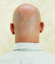 Hair Loss: What Really Works